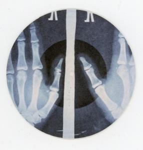 x-ray001